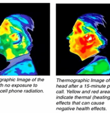 thermographic image cell phone effect on the human head
